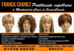 Franck Chanez